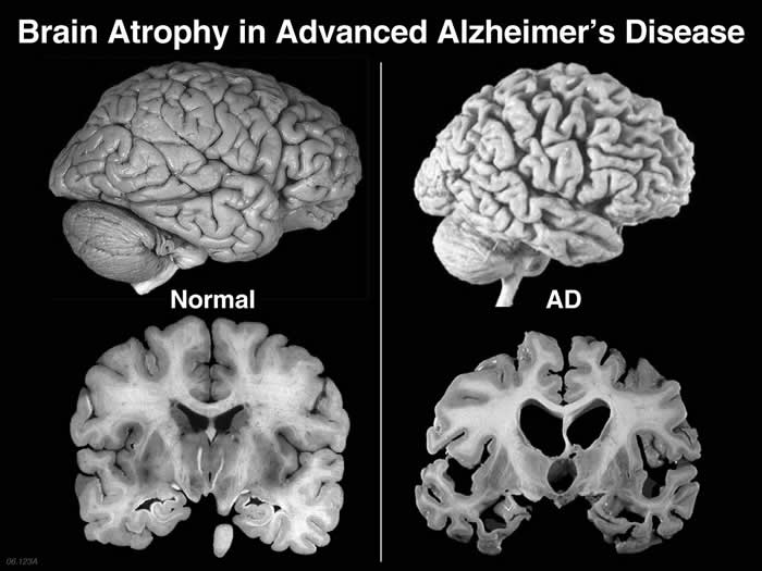 research paper on alzheimers