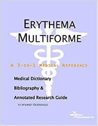 erythema multiforme research papers on a skin condition
