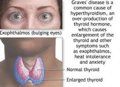 graves disease research paper Graves' disease is the most common cause of hyperthyroidism in the developed world it is caused by an immune defect in genetically susceptible individuals in whom the production of unique antibodies results in thyroid hormone excess and glandular hyperplasia.