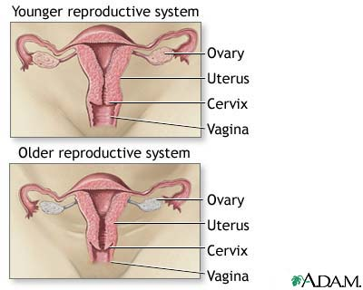 ovarian cyst research paper