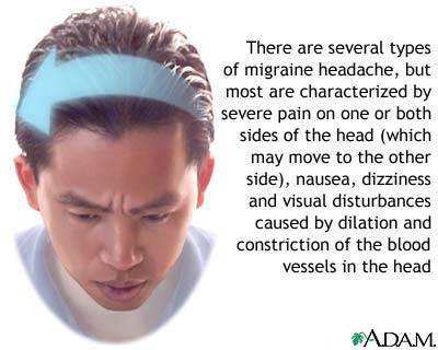 migraine headache research paper This article has been cited by other articles in pmc go to:  the first  international burden of migraine study (ibms-i) revealed that chronic.