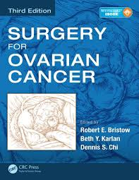 ovarian cancer case studies