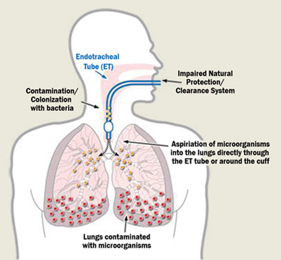 vap research paper Free pneumonia papers, essays, and research papers my account your search returned over 400  background a ventilator- associated pneumonia (vap) is a critical.